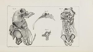 Boston Society for Medical Improvement - Skeleton of an acephalous fetus from the Society's collection