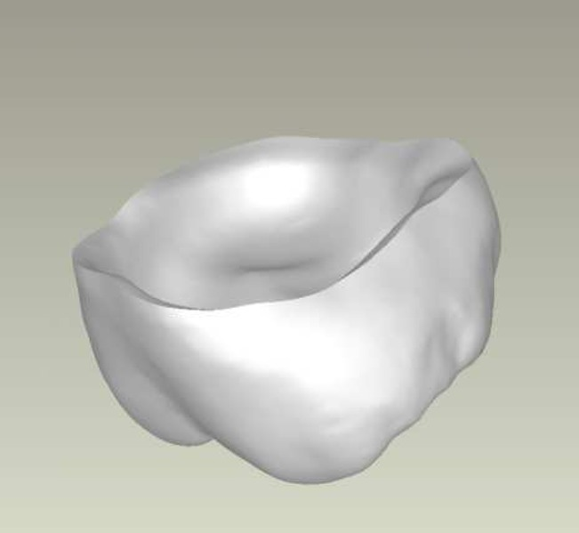 File:CAD Modellation Verblendung.tiff