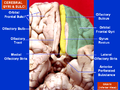 Cerebral Gyri - Inferior Surface2.png