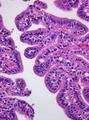 Choroidplexuspapilloma HE400x.png