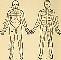 Diseases of the nervous system (1910) (14793030123).jpg