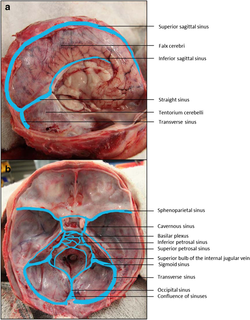 Dural venous sinuses.png