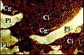 Granulome à polycel en lumière polarisée.jpg