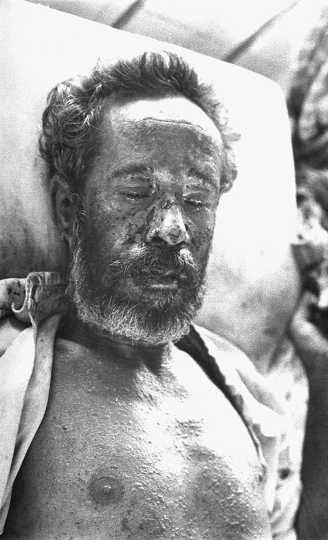 Hemorrhagic smallpox.jpg