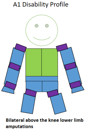 F56 (classification) - Type of amputation for an A1 classified sportsperson.