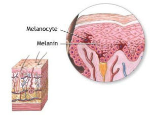 The layers of the epidermis (left). Melanocyte...