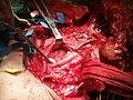 Neck dissection3.jpg