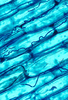 Blue-stained large plant cells with smaller hyphae visible between them