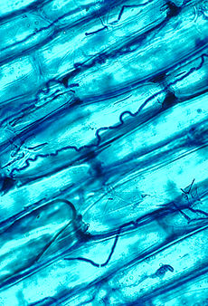 A microscopic view of blue-stained cells, some with dark wavy lines in them