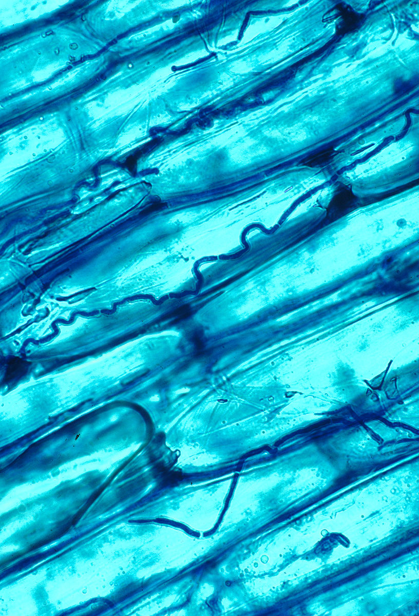 List of endophytes
