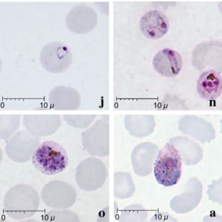 <i>Plasmodium knowlesi</i> Species of single-celled organism