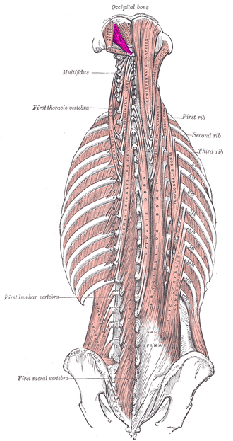 Rectus capitis posterior major muscle - Deep muscles of the back. (Rect. post. major visible at upper left.)