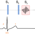 S3 - Diastolic filling sound.png