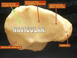 Navicular bone - Image: Slide 23DEN