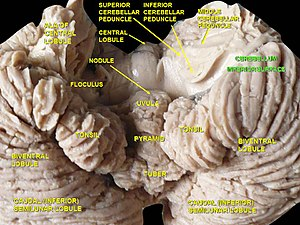 Uvula of cerebellum - Image: Slide 4SER