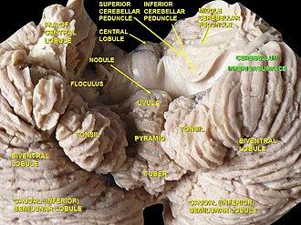 Biventer lobule - Image: Slide 4SER