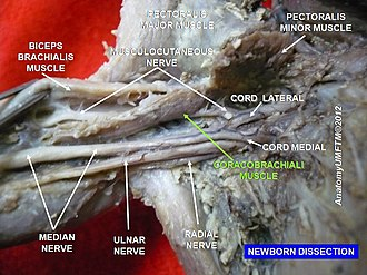 Coracobrachialis muscle - Image: Slide 7n