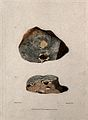 Two sections of diseased lung. Colour mezzotint by W. Say af Wellcome V0009753EL.jpg