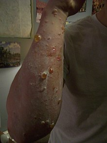 Blisters distributed over an adult forearm