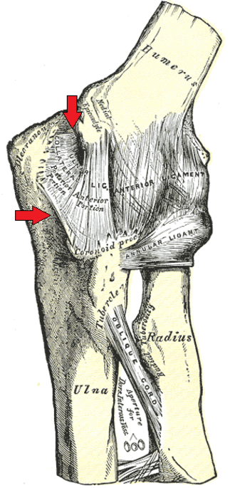 Ulnar collateral ligament of elbow joint - Left elbow-joint, with arrows pointing at the ulnar collateral ligament