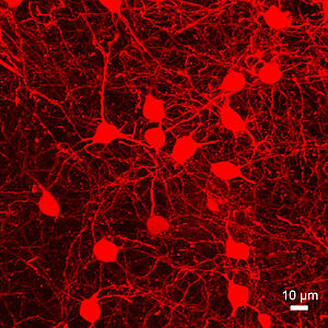 Medium spiny neuron - Image: Z Max Projection of Medium Spiny Neurons Gpr 101Cre dt Tomato