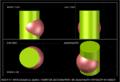 3 حالات تقاطع بين اسطح دورانية.PNG