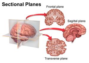 Sagittal plane - Image: Blausen 0104 Brain x secs Sectional Planes
