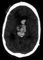 Bleedintocysticmass.png
