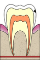 Cavities evolution 2 of 5 ArtLibre jnl.png