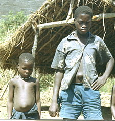 Children with umbilical hernias, Sierra Leone (West Africa), 1967.jpg