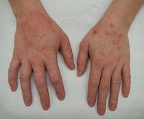 Dermatitis2015.jpg