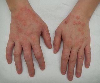 Dermatitis skin disease