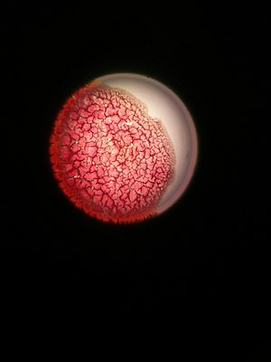 Dry blood under a microscope 4.jpg