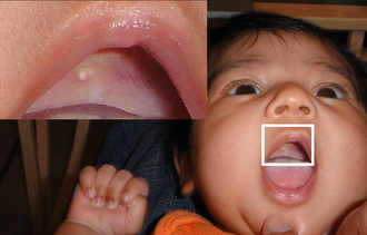Gingival cyst - Epstein's pearl shown in roof of mouth on a five-week-old infant