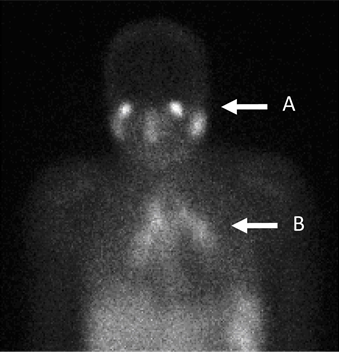 Gallium 67 Scan (Diagnosis of Sarcoidosis)