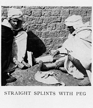 Illustration of straight splints with peg. Wellcome M0002702.jpg