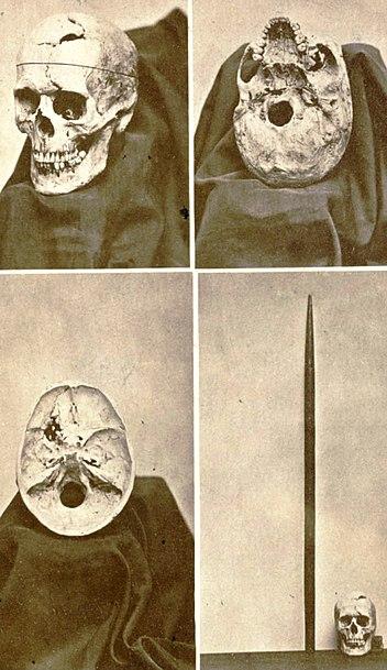 File:JacksonJBS A descriptive catalogue of the Warren Anatomical Museum 1870 frontispiece 623x1024.jpg