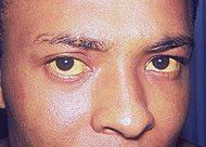 Jaundice_eye.jpg