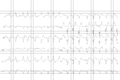 LBBB atrial fibrillation.png
