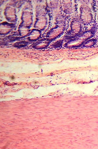 Large intestine - Histological section.