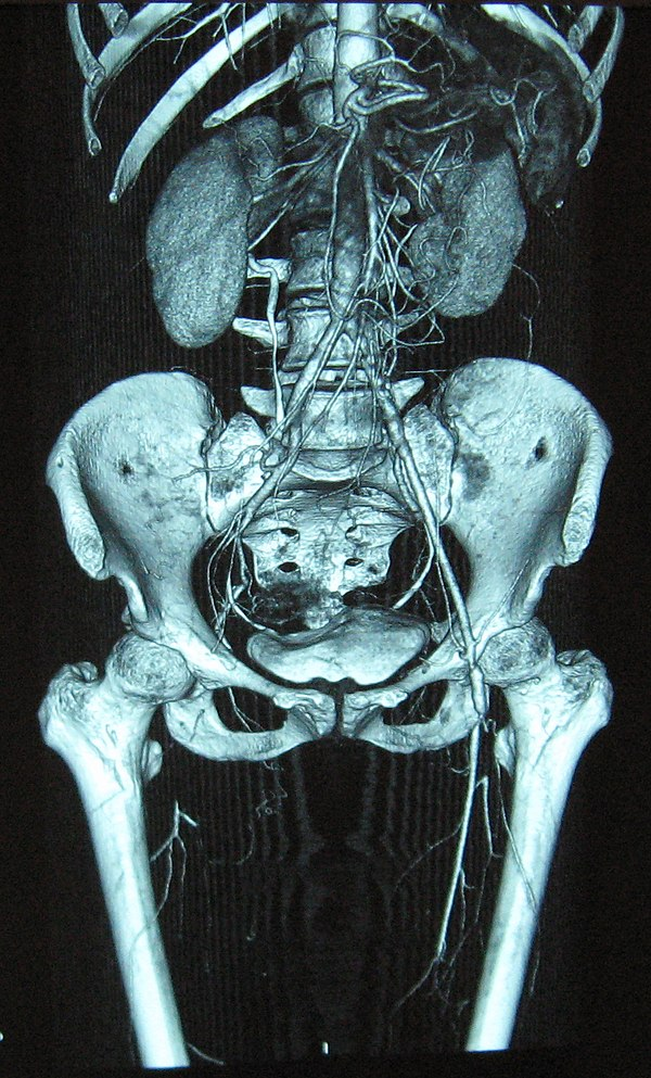 temporal arteritis norsk
