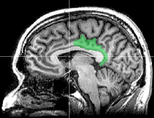 Sagittal MRI slice with highlighting indicating location of the posterior cingulate.