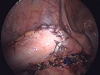 Surgical anastomosis - A hand-sewn bowel anastomosis, in this case of the sigmoid colon