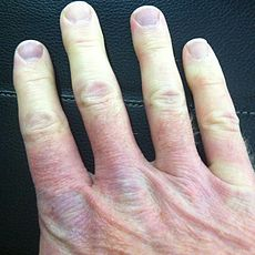 Multicolor Raynaud's Right Hand.jpg