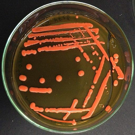 Rhodotorula mucilaginosa colonies 45
