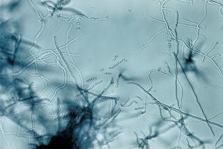 Streptomycetaceae family of Actinobacteria