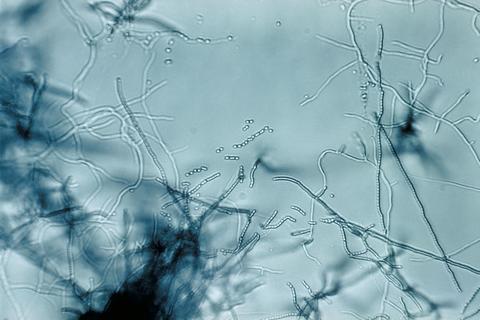 질병의 원인이되는 세균을 대상으로 방선균(Streptomyces sp)의 항균 활성을 조사한 결과