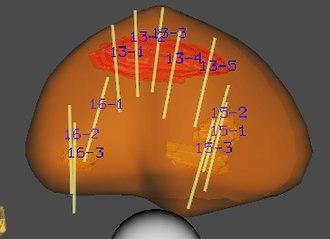 Prostate biopsy - Image: Targeted MRI US fusion prostate biopsy at UCLA