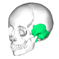 Temporal bone lateral2.png