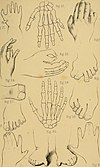 The malformations, diseases and injuries of the fingers and toes and their surgical treatment (1866) (14776859361).jpg